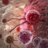 Leucemia Mieloide Aguda: la complejidad de una enfermedad silenciosa.